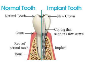 Dental Implant Doncaster